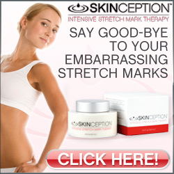 Here Are Some Reasons Why Skinception Intensive Stretch Mark Therapy Is The Best Stretch Marks Cure?