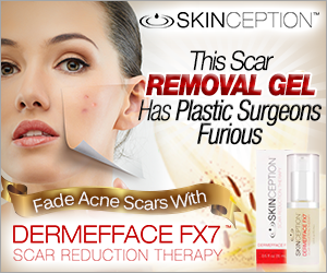 Scar removal gel by skinception